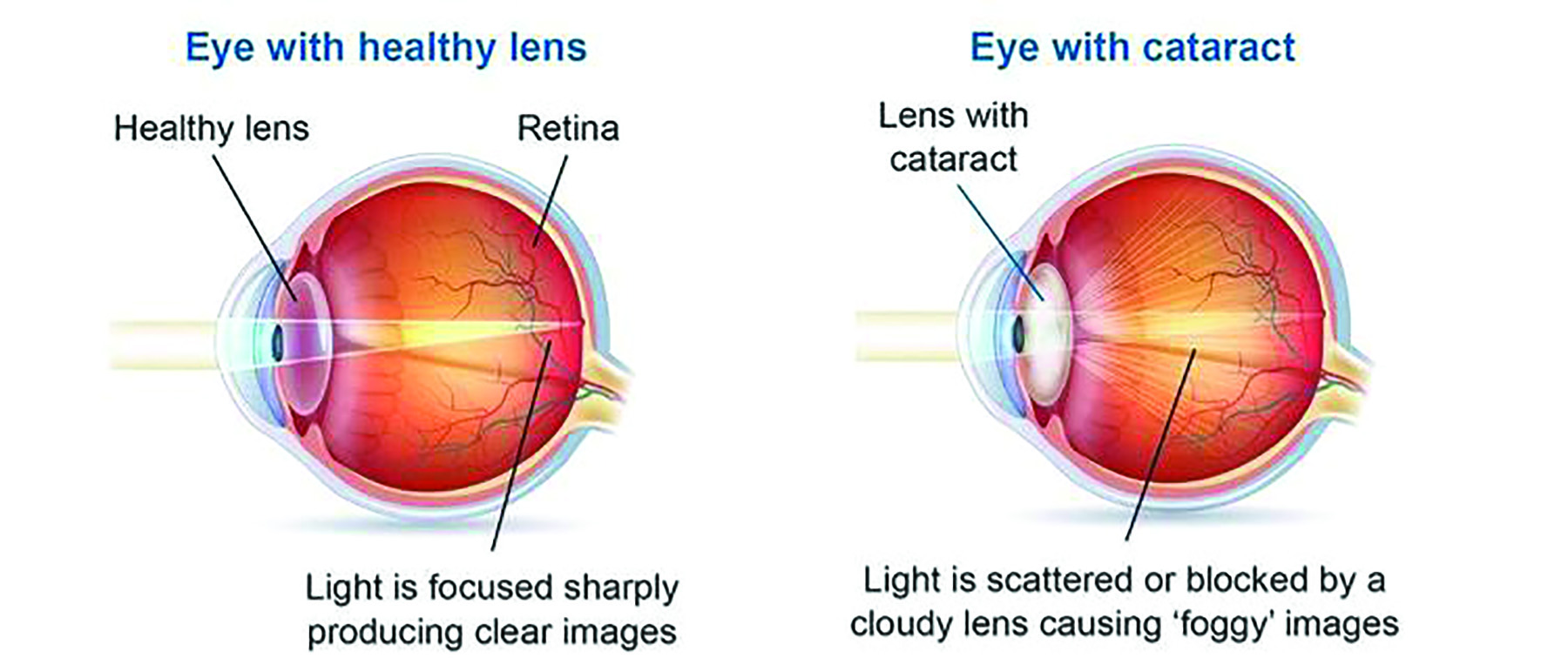 Cataracts typically develop as the human eye ages.