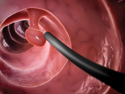 Courtesy columbiasurgery.org &nbsp&nbsp A colonoscopy is the best way to prevent and detect colon polyps and cancers, but getting screened is what matters most when younger than 75.