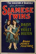 The 1997 Broadway musical Side Show is loosely based on the lives of real-life conjoined twins Daisy and Violet Hilton (above and below).